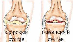Когда болять суставы колени эндопротезирование тазобедренного сустава фото