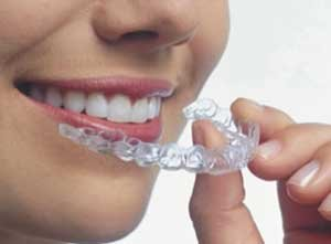 Капа для отбеливания зубов с помощью народных средств