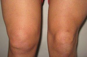 Отеки коленных суставов