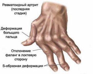 Болят суставы локтях центр илизарова.г.курган.тазобедренные суставы