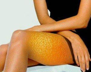 Домашние средства против целлюлита