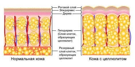 Целлюлит и кожа