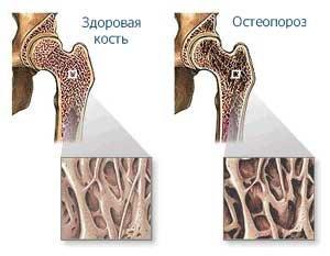 Заболевания из-за нехватки кальция