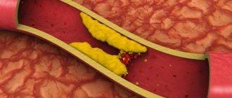 Список продуктов, снижающих уровень холестерина в крови