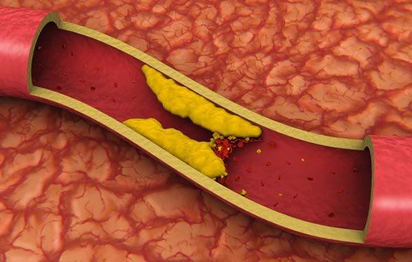 Для снижения плохого холестерина