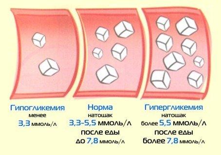 Как контролировать сахар в крови - рекомендации
