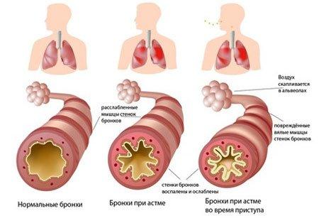 Приступы бронхиальной астмы