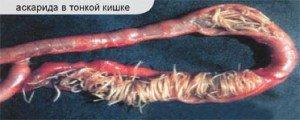 Аскаридоз, признаки наличия паразитов
