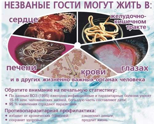 Признаки наличия глистов в организме - список симптомов