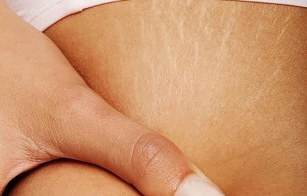 Почему появляются растяжки на коже