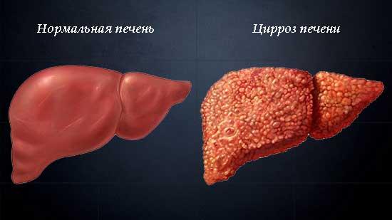 Цирроз печени - восстановление