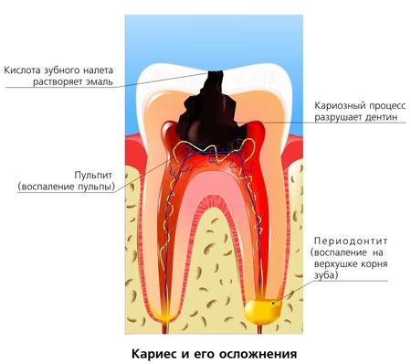 Портятся зубы