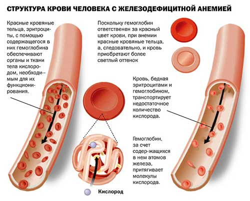 vidy-anemii