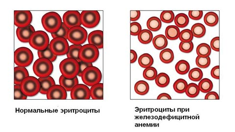 Лечение анемии дефицит железа