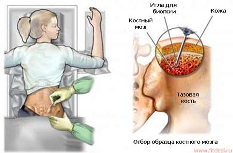 Лечение анемии костный мозг