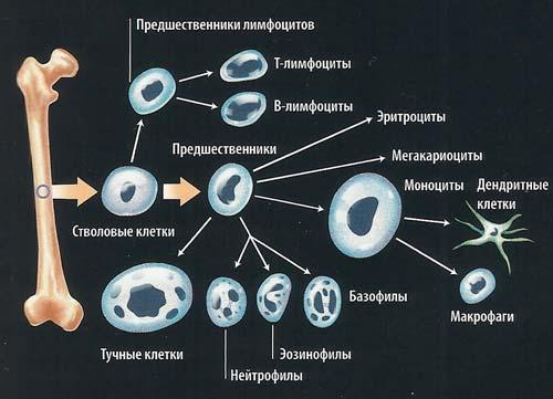 Причины анемии - апластическая анемия