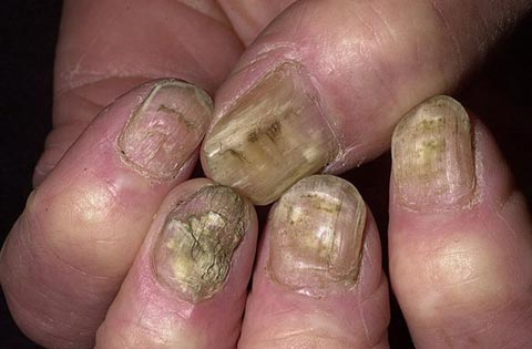 Лечение ногтей с-петербург