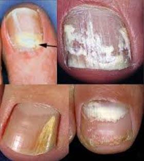 Симптомы грибка ногтей рук
