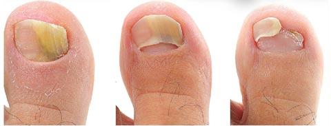 За сколько вылечить грибок ногтей на ногах