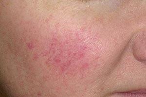 Купероз (сосудистая сетка) на лице. Причины, питание и лечение купероза