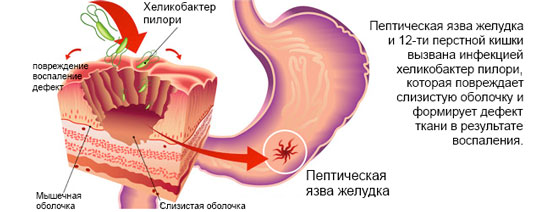 Язва желудка - Хеликобактер Пилори