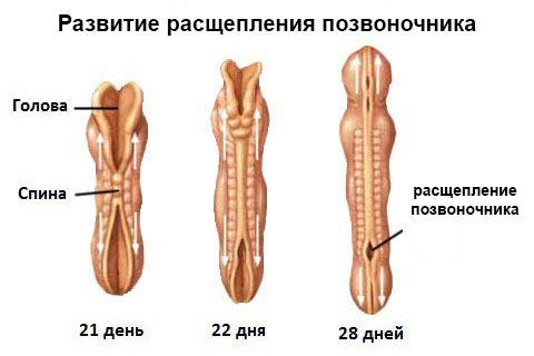 Патология развития нервной трубки