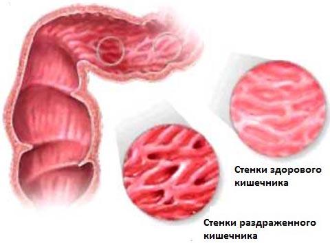 Синдром раздраженного кишечника: симптомы и причины