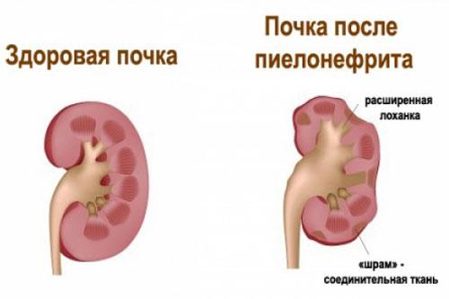 Прививка от гепатита норма
