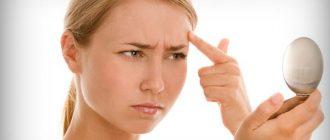 Причины угревой сыпи. Как лечить акне народными средствами?